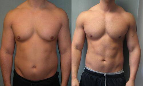 gynectrol gynecomastia-before and after results