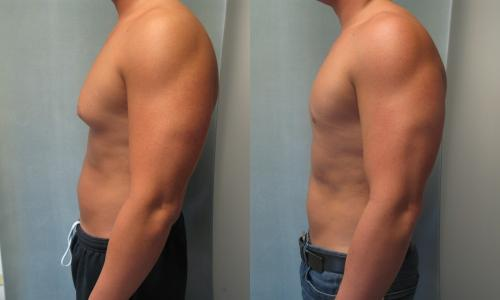 gynectrol gynecomastia-before and after